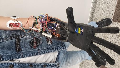 Mão prótese impressão 3D